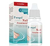 Fungal nail treatment, Nail Fungus Treatment, Anti fungal Nail Solution— Kills Fungus on