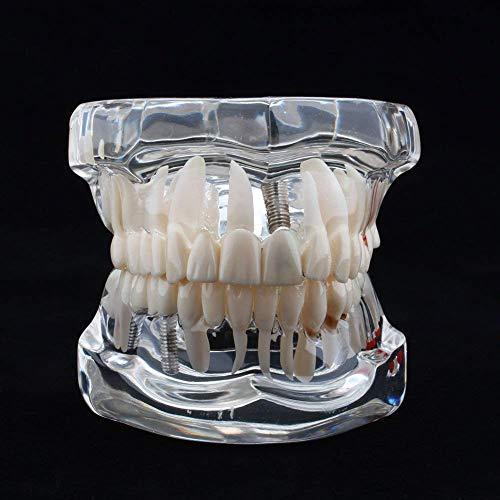 Yosoo Transparent Adult Pathologies Dental Dentist Implant Demonstration Periodontal Disease Assort Teeth Gums Tooth Care Teaching Study Standard Typodont Model - Removable (1 pcs)