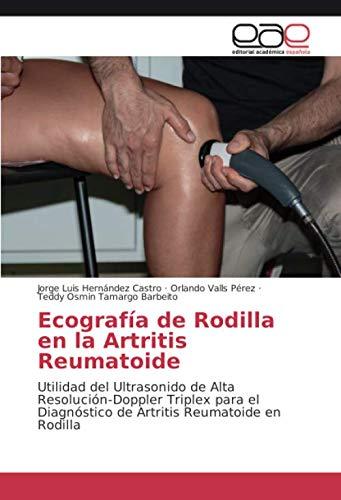 Ecografía de Rodilla en la Artritis Reumatoide: Utilidad del Ultrasonido de Alta Resolución-Doppler Triplex para el Diagnóstico de Artritis Reumatoide en Rodilla