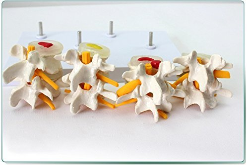 Dental Power Medical Lumbar Vertebrae Combination of Normal and Pathological Models