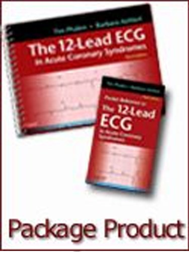 The 12-Lead ECG in Acute Coronary Syndromes - Text and...