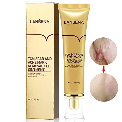 Acne Scar Removal Cream Stretch Marks Face Skin Repair Cream Shrink Pores Gel-Fade Scar Marks Acne Skin Care (30ml)