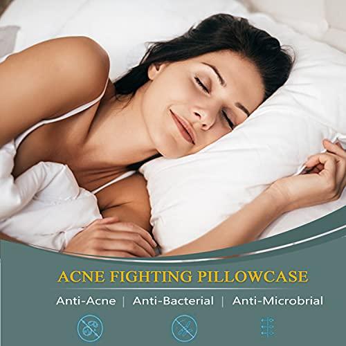 Acne Pillowcase, Silver Technology Anti-Acne Pillow Case, Washable Acne Fighting Pillowcase Silver Pillowcase Maintain Cleaner 19.7''×30'' (1)