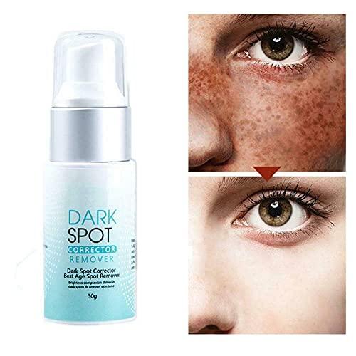 Removedor corrector de manchas oscuras para rostro y cuerpo, reparación rápida del tono, corrector de manchas oscuras, evita la formación de manchas oscuras, se desvanecen (1Pcs)