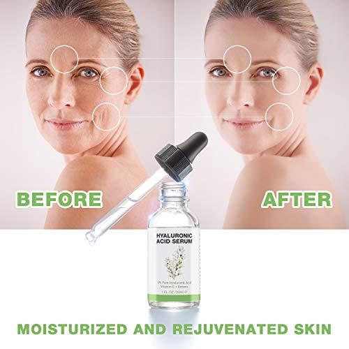 414lgJNtOPL - Hyaluronic Acid Serum for Skin - 100% Pure Organic HA, Anti-Aging Face Serum for Dry Skin, Fine Lines. Hydrating, Repairing, Replumping, Suitable for Sensitive Skin, 1 Fl. Oz