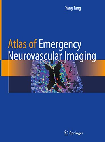 Atlas of Emergency Neurovascular Imaging (English Edition)