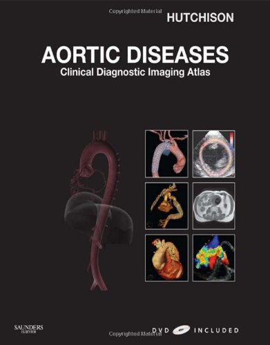 Aortic Diseases, w. DVD: Clinical Diagnostic Imaging Atlas with DVD (Cardiovascular Emergencies: Atlas and Multimedia)