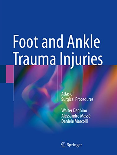 Foot and Ankle Trauma Injuries: Atlas of Surgical Procedures (English Edition)