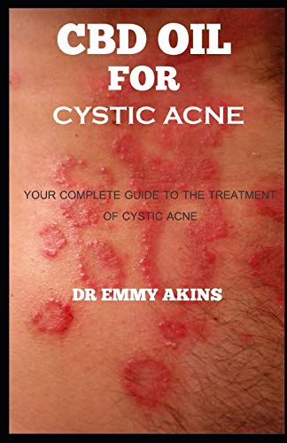CBD OIL FOR CYSTIC ACNE: Your Complete guide to the Treatment of Cystic Acne