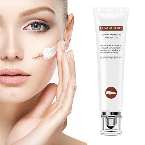 Scar Cream,Scar Removal Cream Gel,Scar Treatment,Scar Repair Cream,Acne Spots Treatment,Scar Gel Remove & Lighten Old & New Scars,Acne Scar Removal Cream,Face Skin Repair Cream