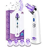 Blackhead Remover Pore Vacuum - Electric Blackhead Vacuum Cleaner Blackhead Extractor Tool Device Comedo Removal Suction Beauty Device for Women(Purple)