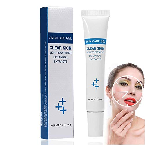 Crema de Tratamiento de acné Gel para el Cuidado de la Piel extractos botánicos Oil Control Acne Cream Combate el Acne Juvenil y el Acne Adulto