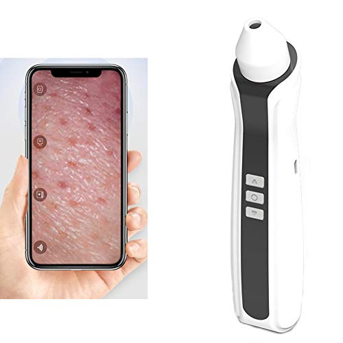 Chen Saubere Mitesser Akne Extraktionswerkzeug Mitesser Poren Staubsauger, Ersatzspitze, für Gesichts- und Hautpflege Accessoires, Baby-Nippel-Material