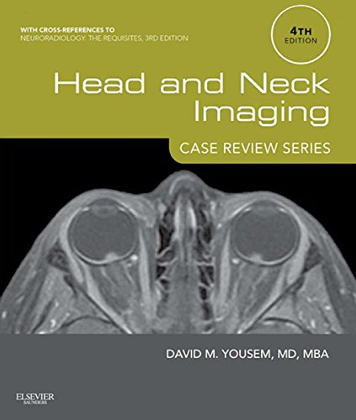 ジャニス反毒胆嚢Head and Neck Imaging: Case Review Series (English Edition)