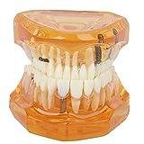Enfermedad Modelo de dientes dentales Implante de dientes Modelo de demostración de dientes extraíbles Estudio Modelo de enseñanza de patología Color naranja