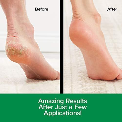 Original Hempvana Heel Tastic Intensive Heel Repair