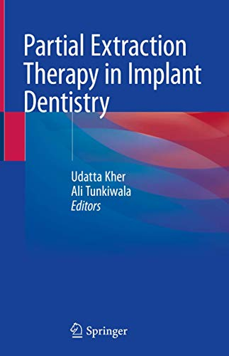Compare Textbook Prices for Partial Extraction Therapy in Implant Dentistry 1st ed. 2020 Edition ISBN 9783030336097 by Kher, Udatta,Tunkiwala, Ali