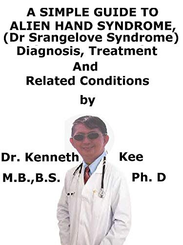 A Simple Guide To Alien Hand Syndrome, (Dr Strangelove Syndrome) Diagnosis, Treatment...