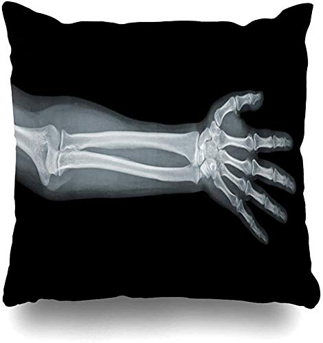 Throw Pillow Cover Cushion Cases Broken Arm Hand Xray View On Anatomy Black Bone Skeleton Body Human Radiation Home Decor Pillowcase Square 16x16 Inch Zippered