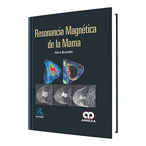 RESONANCIA MAGNETICA DE LA MAMA