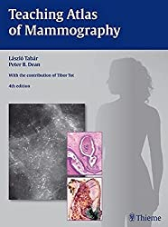 recommended book for Mammography by Tabar