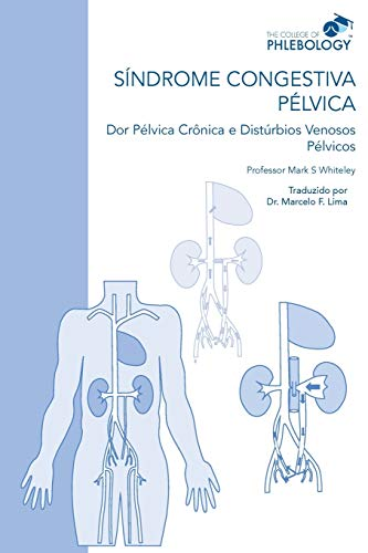 SÍNDROME CONGESTIVA PÉLVICA Dor Pélvica Crônica e Distúrbios Venosos Pélvicos