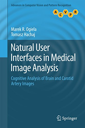 Natural User Interfaces in Medical Image Analysis: Cognitive Analysis of Brain and Carotid Artery Im