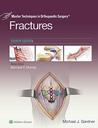 Master Techniques in Orthopaedic Surgery: Fractures (English Edition)