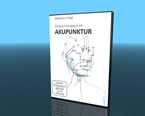 Erfolgreich therapieren mit Akupunktur