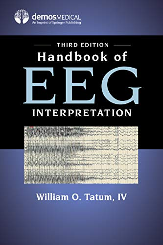 Handbook of EEG Interpretation, Third Edition (English Edition)