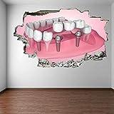 Pegatinas de pared-3D- Etiqueta engomada de la pared delimplante dental del dienteMural decoración de la oficina-50x70cm