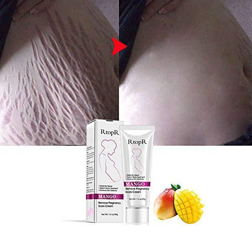 Crème pour enlever les cicatrices, vergetures Supprimer les cicatrices Crème pour vergetures Produit de soin spécial pour les cicatrices et les vergetures Hydratant pour le corps pendant la grossesse