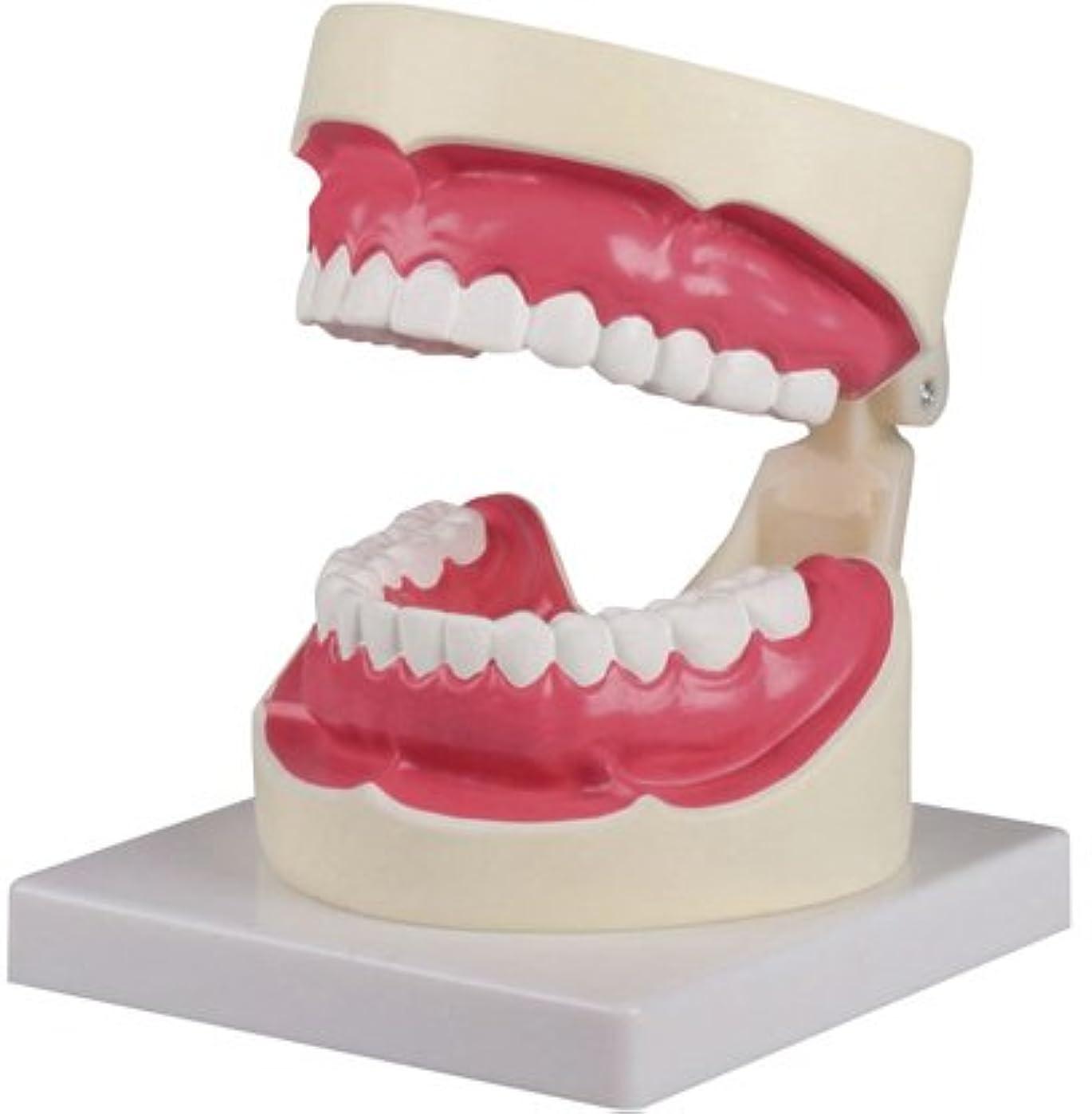 息子慣性誘惑する歯磨き(口腔ケア)指導模型1.5倍大 D217 ?????(??????)???????(24-6839-00)【エルラージーマー社】[1個単位]