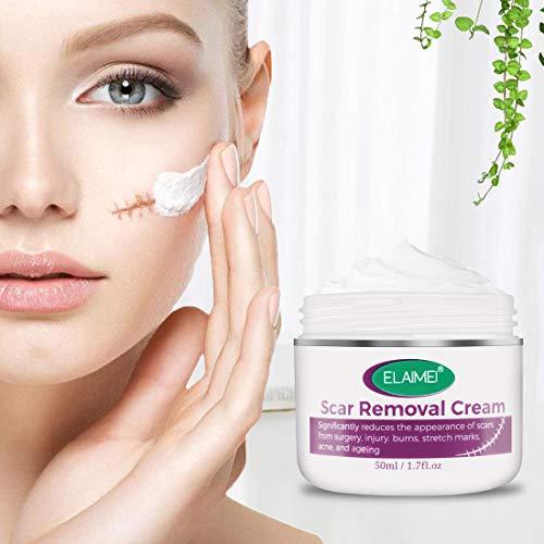 Cicatrices Crema,Crema Cicatriz,para el acné facial, cicatrices, estrías, quemaduras, reparación de la piel, 50 ml / 1,7 oz