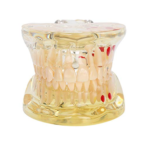 Oral Repair Model, Model Dentist Standard, Movable, Dental Model, for Study Teaching Tool Demonstration, Dental