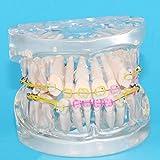 SHUAITOOTH Zähne Dental-Modell Keramik KFO Ligatur Krawatten Dentistry Vorführmodell