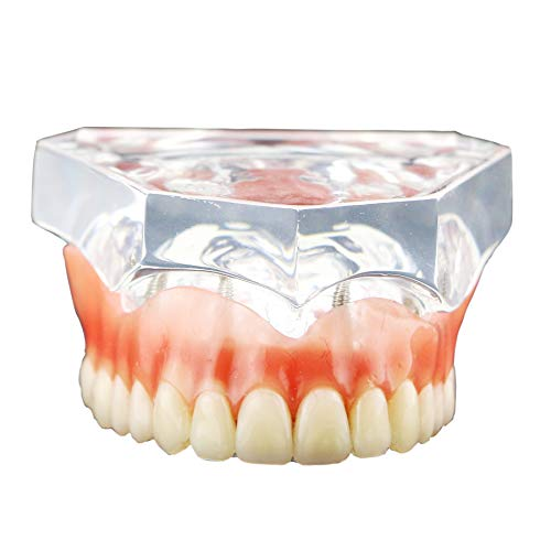DENTALMALL Dental Upper Implants Model Overdenture with 4 Superior Teeth Demo Transparent Vision for Education and Study Model Tool