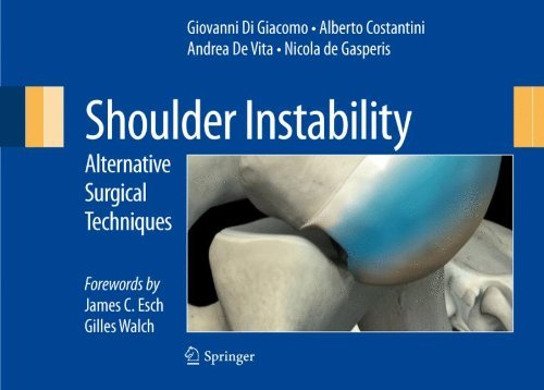 Shoulder Instability: Alternative Surgical Techniques (English Edition)