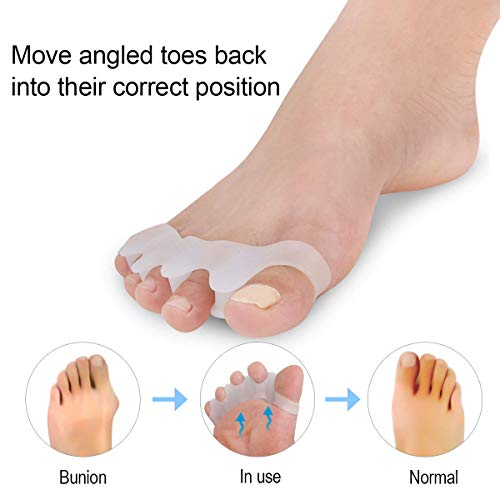 Toe Separators, Toe Stretchers, Toe Separators Stretchers, Gel Rubber Silicone Toe Spacers, Orthopedic Bunion Corrector, Hammer Straighten Correct Bunion Pain Toe for Women and Men, 2 Pairs