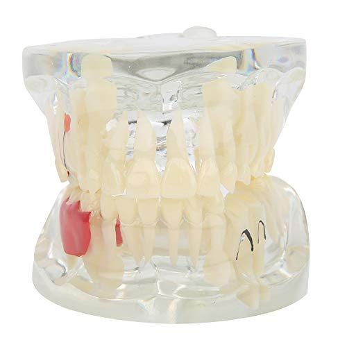 Modelos de Dientes dentales, Herramienta de Aprendizaje para Estudiantes Modelo patológico de Dientes, investigación científica Modelo de Dientes Modelo de Fila de Dientes de Resina