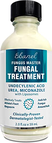 Ebanel Foot Fungus Treatment Extra Strength Athletes Foot Cream with Miconazole, Undecylenic Acid, Oregano Oil, Kills Fungus On Skin That Leads to Finger Toe Nail Fungus, Ringworm, Jock Itch, 2 Oz