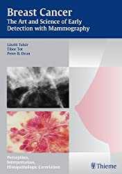 Breast Cancer - The Art and Science of Early Detection with Mammography: Perception, Interpretation, Histopathologic Correlation - Recommended book for breast imaging by Tabar