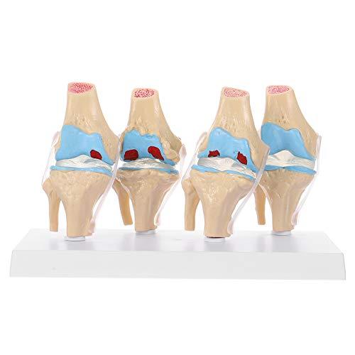 ULTECHNOVO Modelo de Anatomia Humana Modelo de Articulação Do Joelho Com Ligamento Do Joelho Na Altura Do Joelho Osteoartrite Do Joelho Conjunta para O Consultório Médico Ferramenta