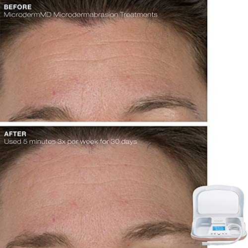 Trophy Skin MicrodermMD, Professional Diamond Microdermabrasion Machine with On Screen Display & Suction Tool, Exfoliates to Promote Cell Turnover for Skin Rejuvenation, For Use on Face and Body