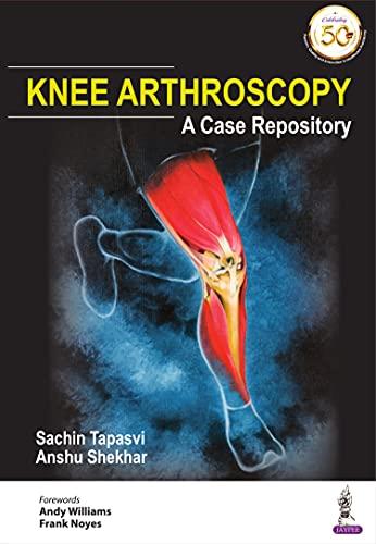 Knee Arthroscopy: A Case Repository (English Edition)