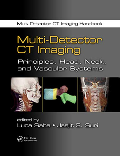Multi-Detector CT Imaging: Principles, Head, Neck, and