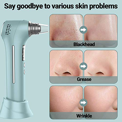 Blackhead Remover Pore Vacuum Cleaner - Uaike Electric Facial Ion Blackhead Extractor Tool Device with 5 Adjustable Suction Power and 5 Probes - USB Rechargeable,Upgraded Hot and Cold Skin Care
