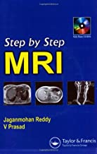 Best step by step mri Reviews