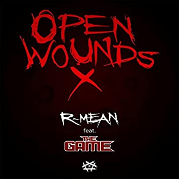 Open Wounds X (feat. The Game)
