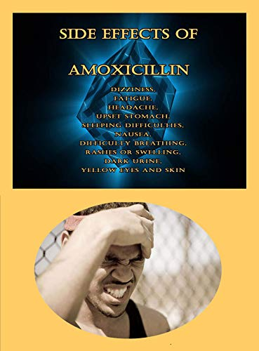 Side Effects of Amoxicillin: Dizziness, Fatigue, Headache, Upset Stomach, Sleeping Difficulties, Nausea, Difficulty Breathing, Rashes or Swelling, Dark Urine, Yellow Eyes and Skin (English Edition)